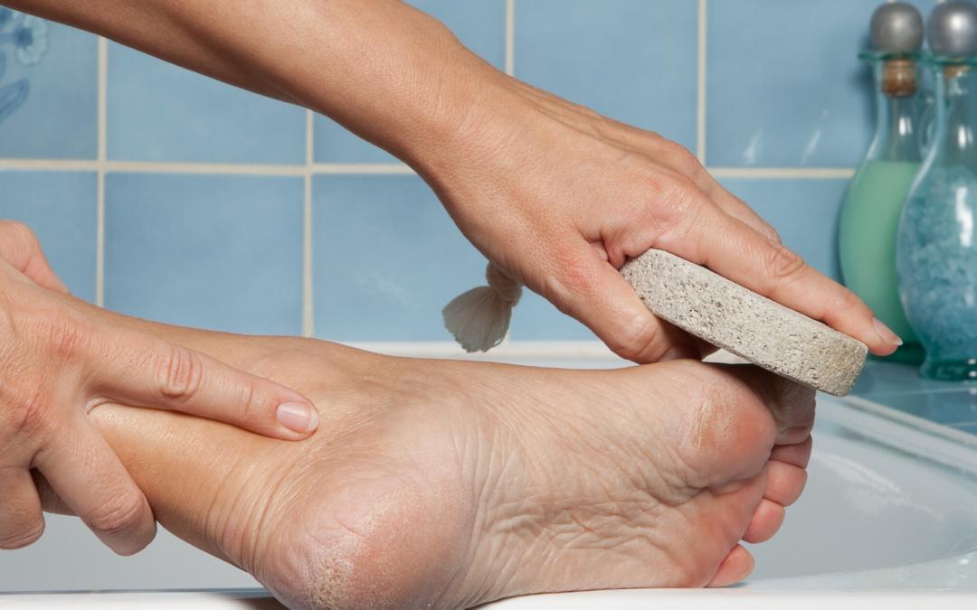 Lábgomba, körömgomba, tyúkszem – Bőrbetegségek a lábon